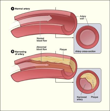 artery plaque buildup